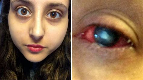 Student forced to stay awake for days on end to stop eye